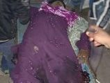 দৌলতখানে ঢাকাগামী লঞ্চের ধাক্কায় যাত্রীর পা বিচ্ছিন্ন।